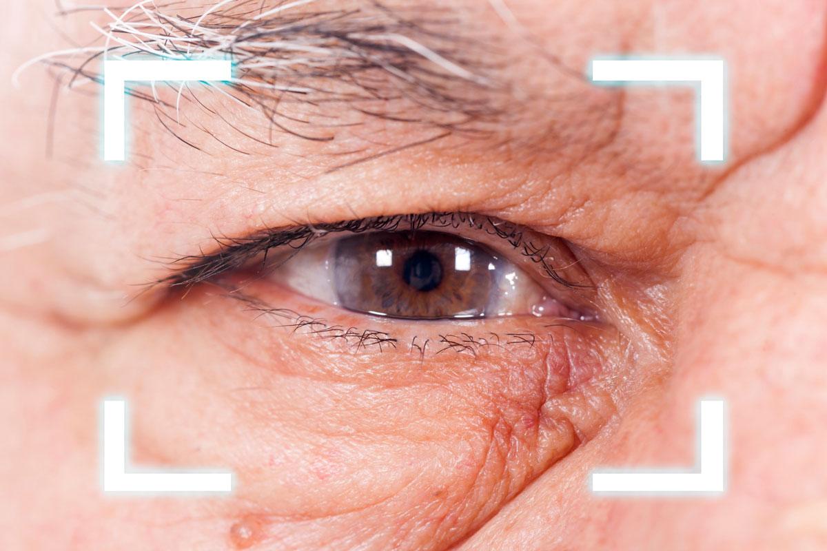 Grauer Star Augenarzt Radebeul Praxis Kerstin Brübach