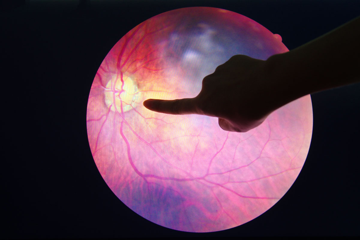 Netzahutdiagnostik Augenarzt Radebeul Praxis Brübach